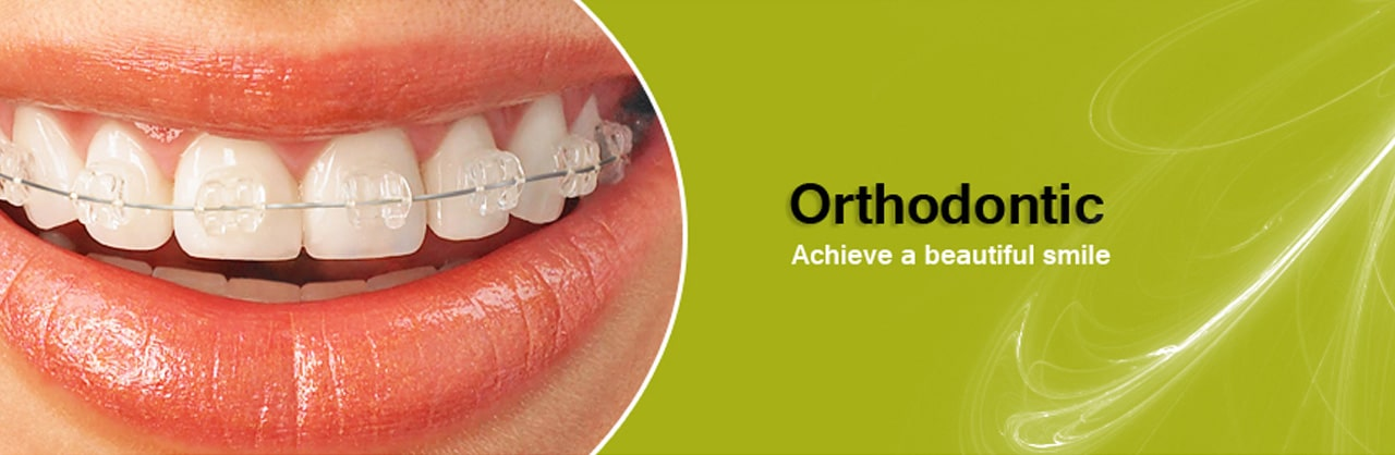 Orthodontic Products
