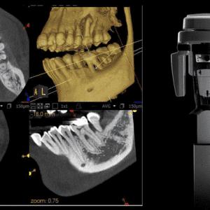 Carestream Dental CS8100 Digital Panoramic Xray 12