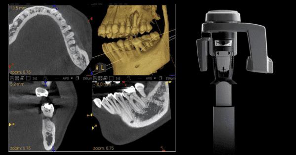 Carestream Dental CS8100 Digital Panoramic Xray 6